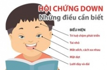 infographics nhung dieu can biet ve hoi chung down o tre
